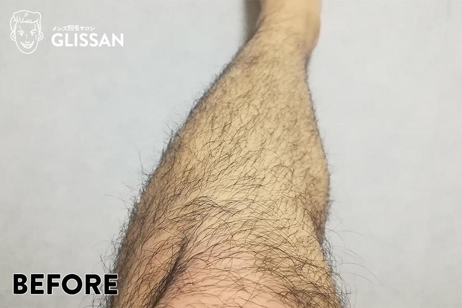 足・脚脱毛1回目ビフォー
